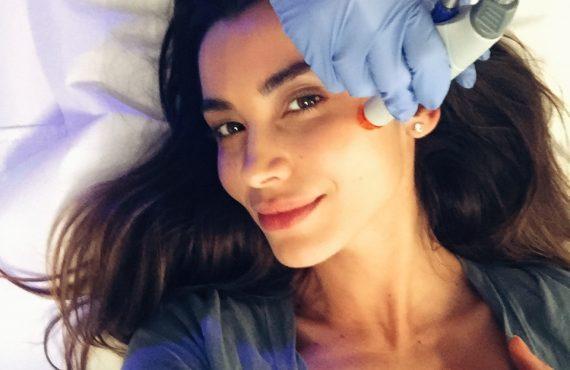 Terapia Vampir (PRP) - Lili Sandu